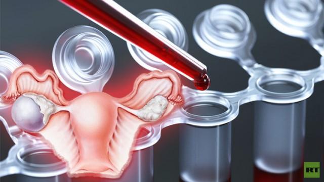 سرطان المبيض يكتشف عن طريق فحص الدم